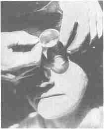 Concentrating the rays of the sun upon the eyeball with a lens or burning glass